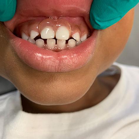 Kid's Missing Teeth Treatment
